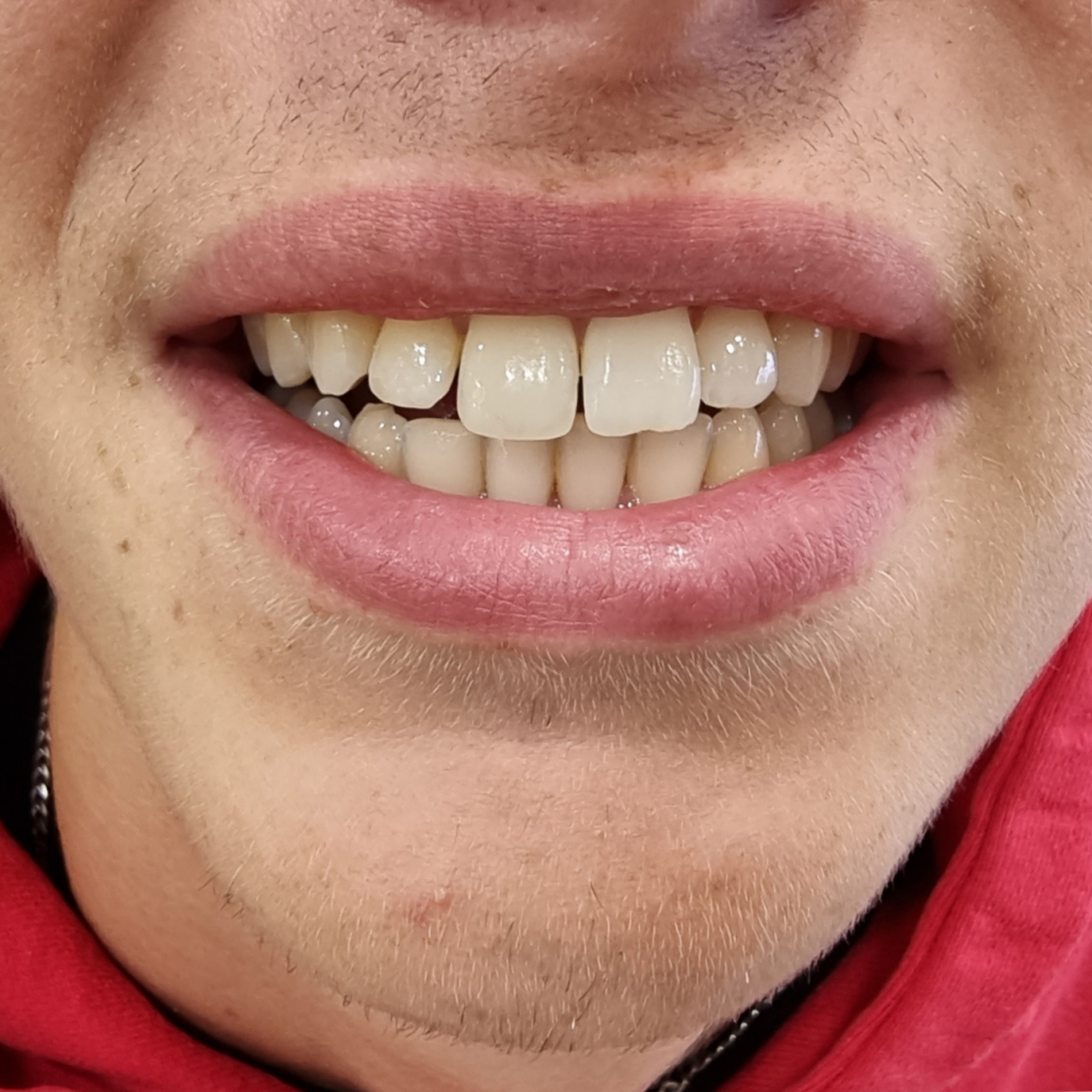 Patient smiling after having composite bonding to a broken tooth