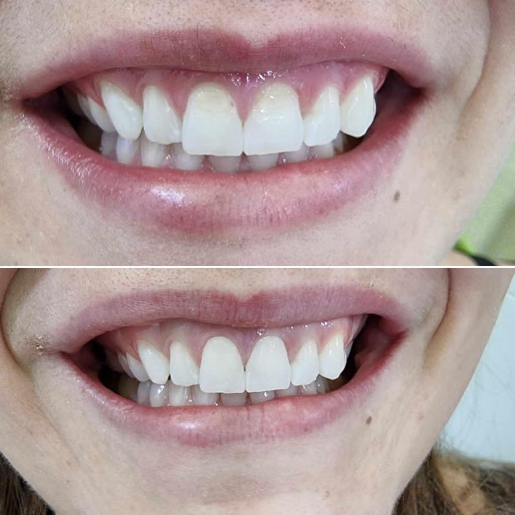 Before and after pictures showing a patient smiling after her composite bonding treatment